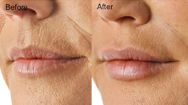 Patient before and after Dermal Fillers treatment