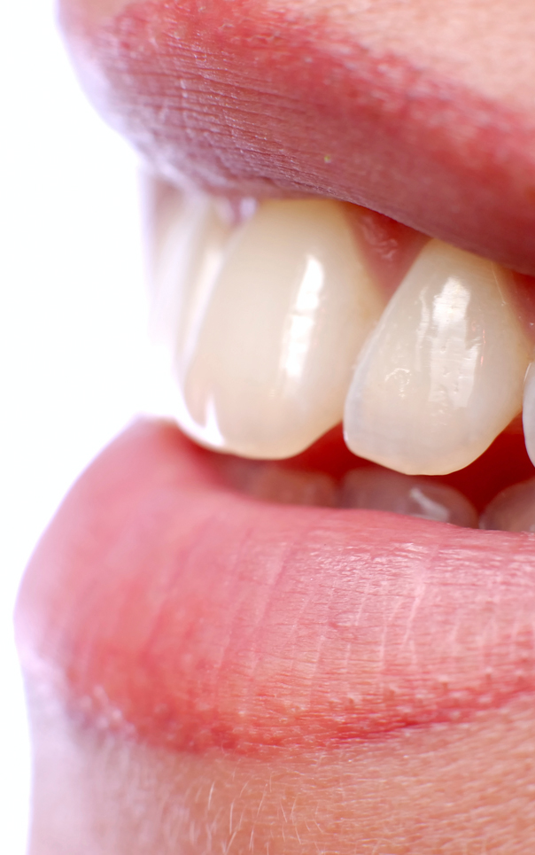 White / Composite Fillings - Cosmetic Dentistry Crawley