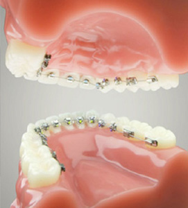 Lingual braces are applied to the back of your teeth - Crawley Dentist
